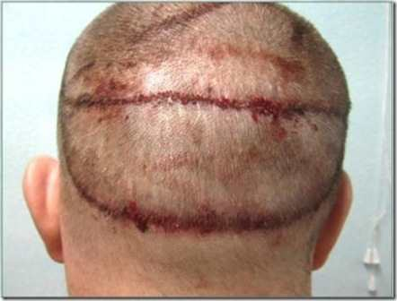 10KeyThings-Hair-Transplant-side-effects 10 ways that Hunger of being beautiful can Destroy You