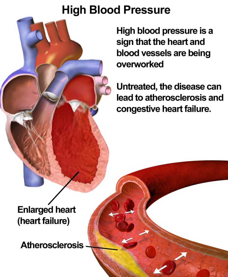 10KeyThings-High-blood-pressure 10 Simple ways to cope with High Blood Pressure
