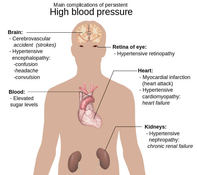 10KeyThings-main-complications-high-bp 10 Simple ways to cope with High Blood Pressure